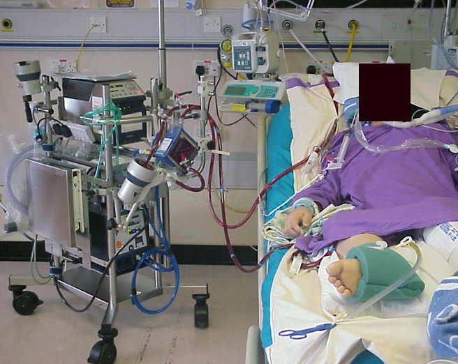 2010 Oct 16 Extracorporeal Membrane Oxygenation Ecmo