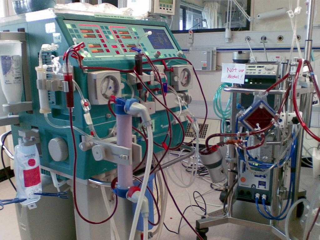 Fig 7. Sub-circuit for continuous renal replacement therapy is set up within the ECMO circuit